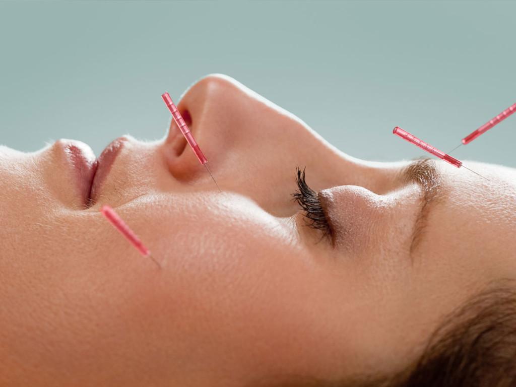 [:pt]Acupunctura-estetica